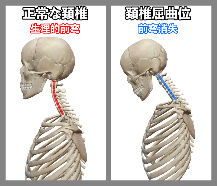 f:id:health--life:20200909140210p:plain