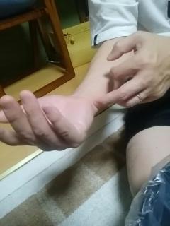 アトピー性皮膚炎に有効な経穴神門(しんもん)