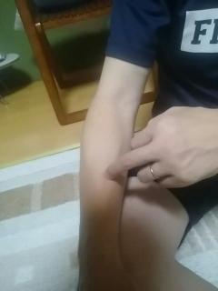 テニス肘予防のツボ偏歴(へんれき)