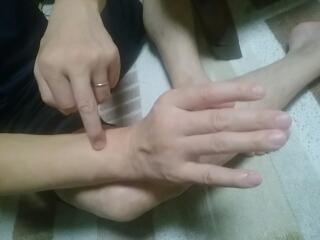 肘が痛いのに改善ツボ外関(がいかん)