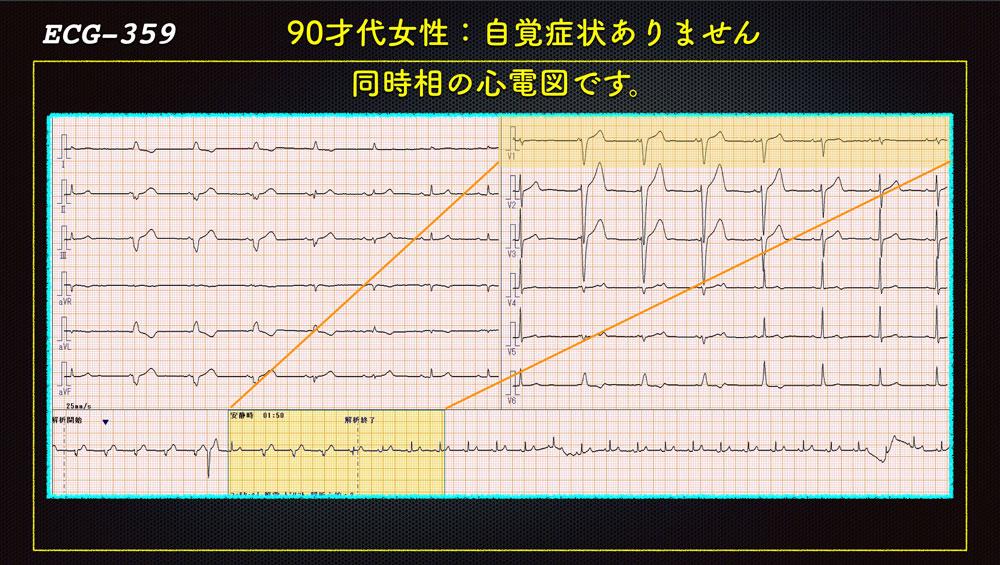 f:id:heart2019:20200115160334j:plain