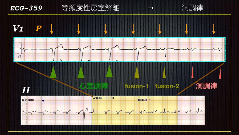 f:id:heart2019:20200115160454j:plain