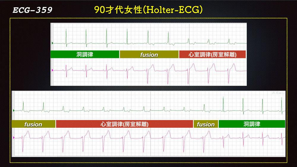 f:id:heart2019:20200115160556j:plain