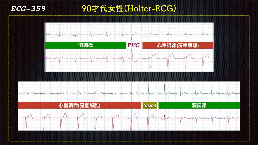 f:id:heart2019:20200115160620j:plain