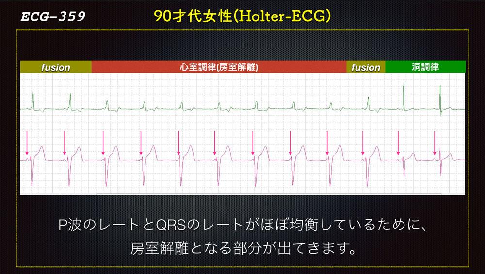 f:id:heart2019:20200115160742j:plain