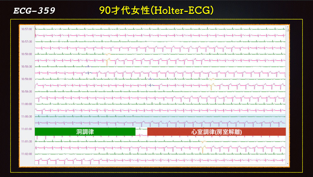 f:id:heart2019:20200115160829j:plain