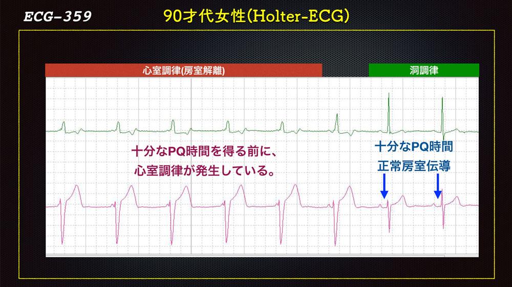 f:id:heart2019:20200118222434j:plain
