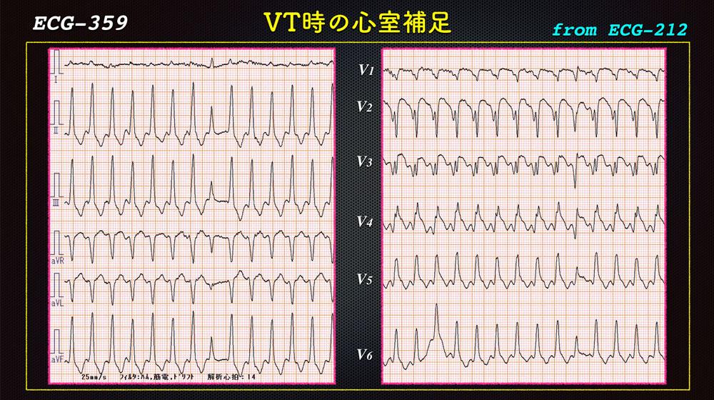 f:id:heart2019:20200118222602j:plain