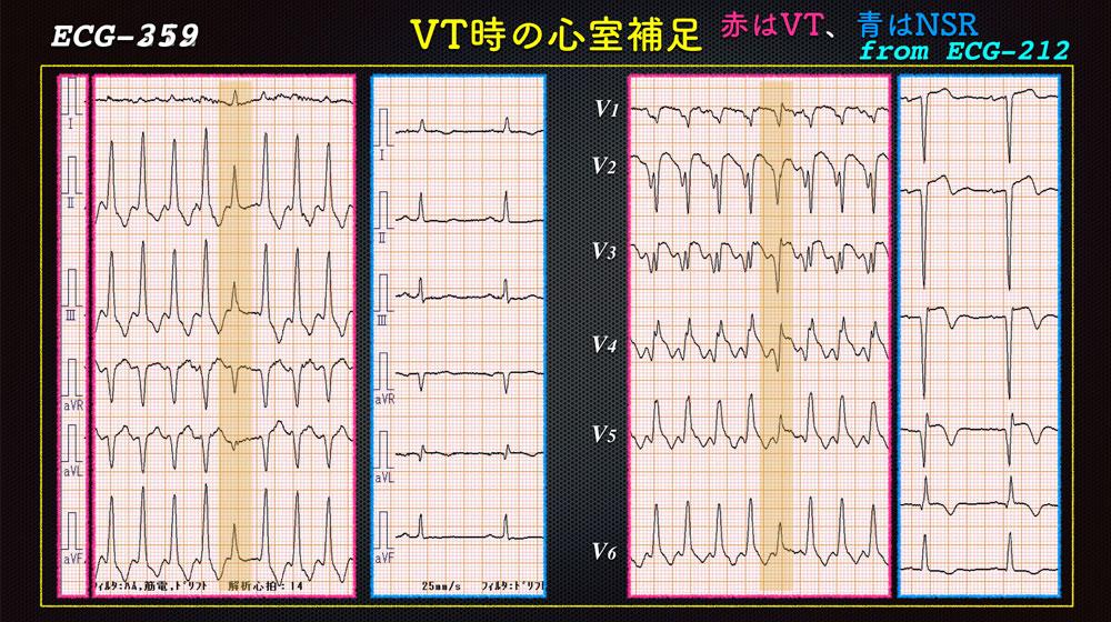 f:id:heart2019:20200118222700j:plain
