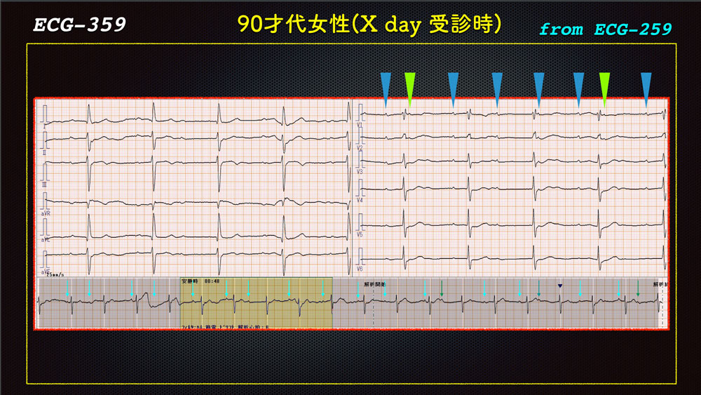 f:id:heart2019:20200118223311j:plain