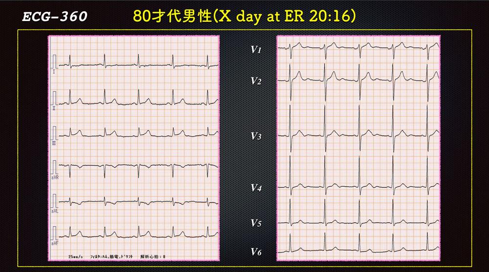 f:id:heart2019:20200122005154j:plain
