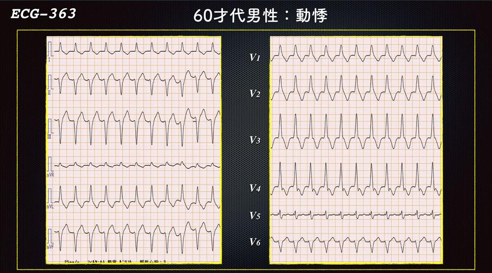 f:id:heart2019:20200216213126j:plain