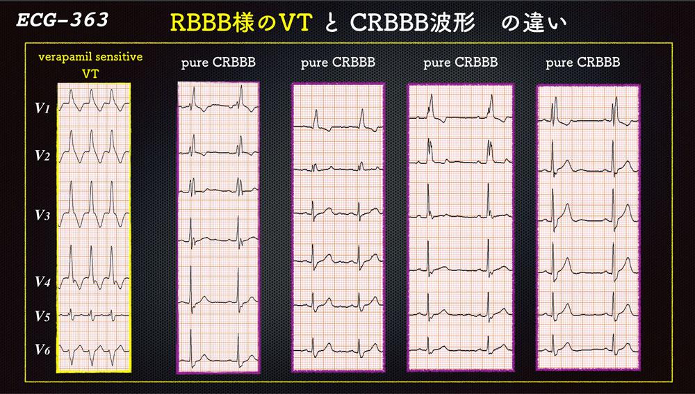f:id:heart2019:20200221155056j:plain
