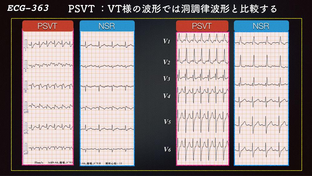 f:id:heart2019:20200221155717j:plain