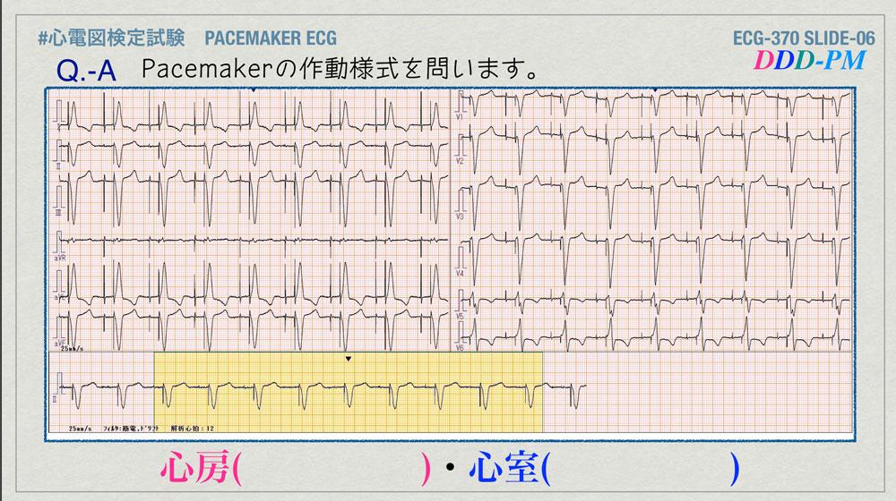 f:id:heart2019:20200402221139j:plain