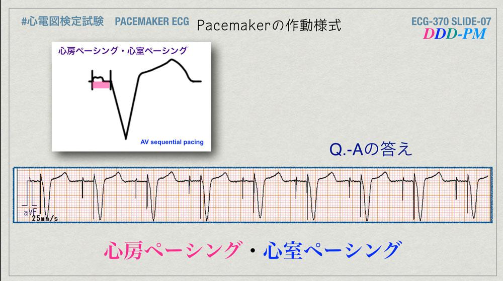 f:id:heart2019:20200402221220j:plain
