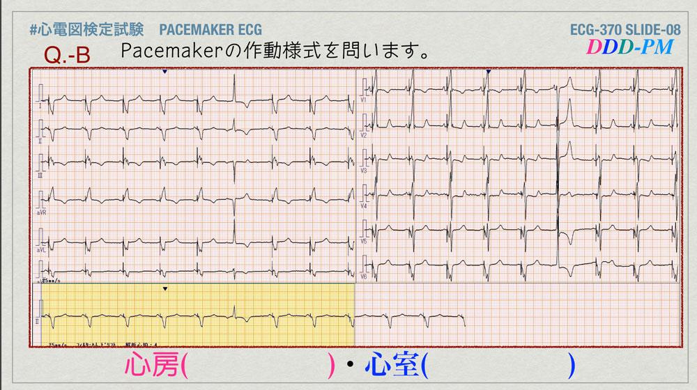 f:id:heart2019:20200402221326j:plain