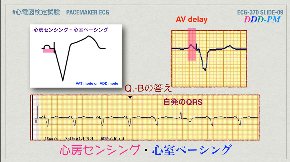 f:id:heart2019:20200402221407j:plain