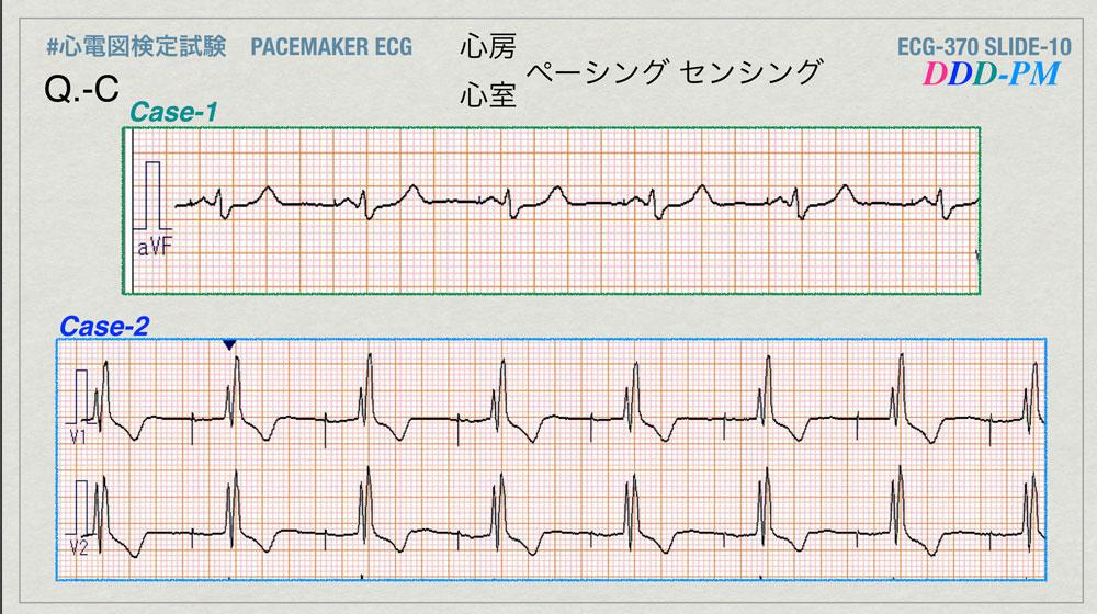 f:id:heart2019:20200402221453j:plain