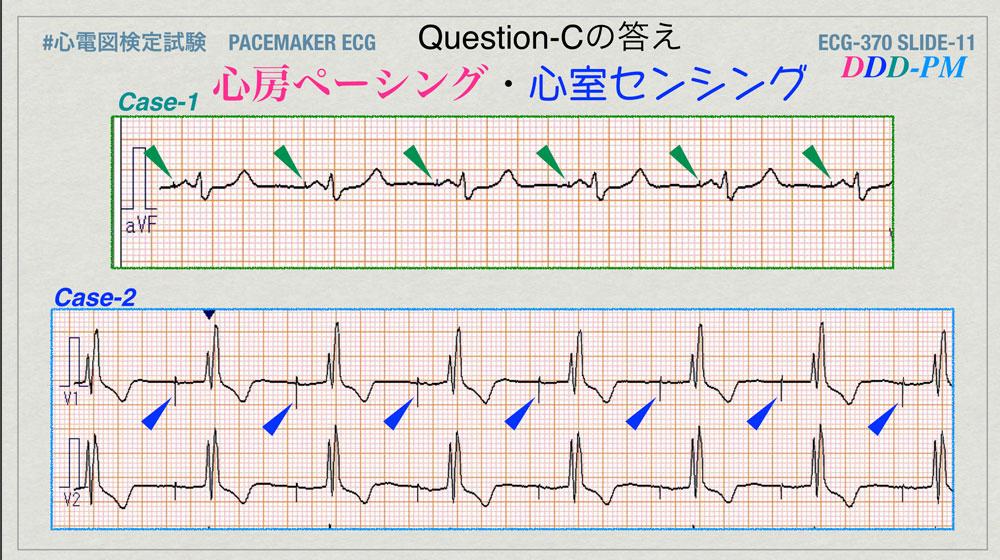 f:id:heart2019:20200402221704j:plain