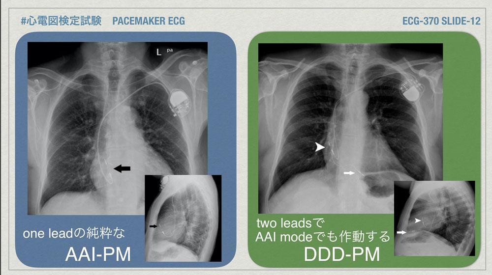 f:id:heart2019:20200402221745j:plain