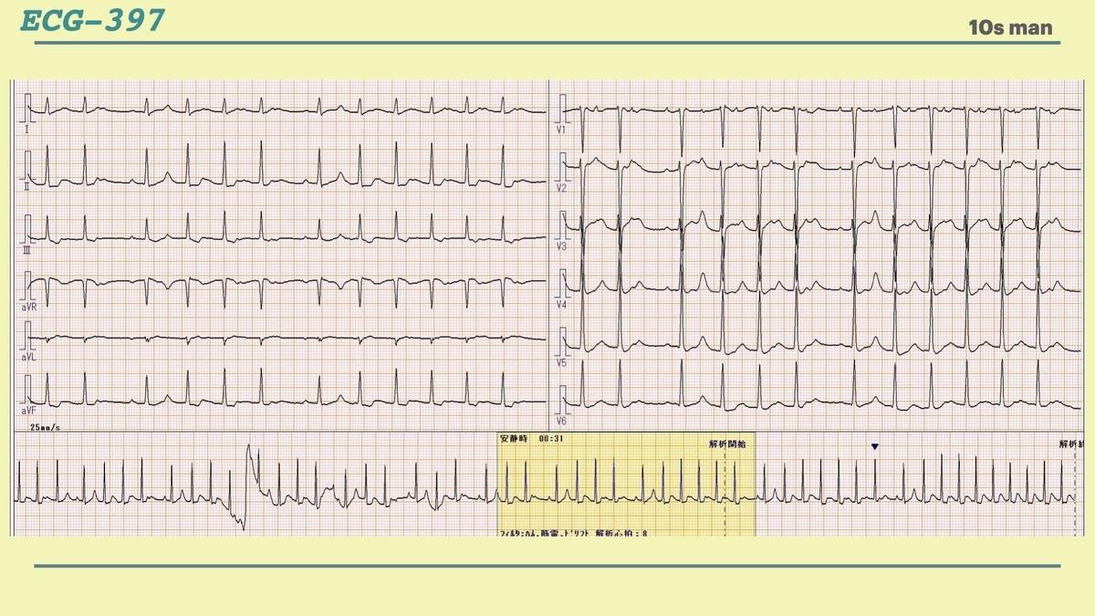 f:id:heart2019:20210411201742j:plain