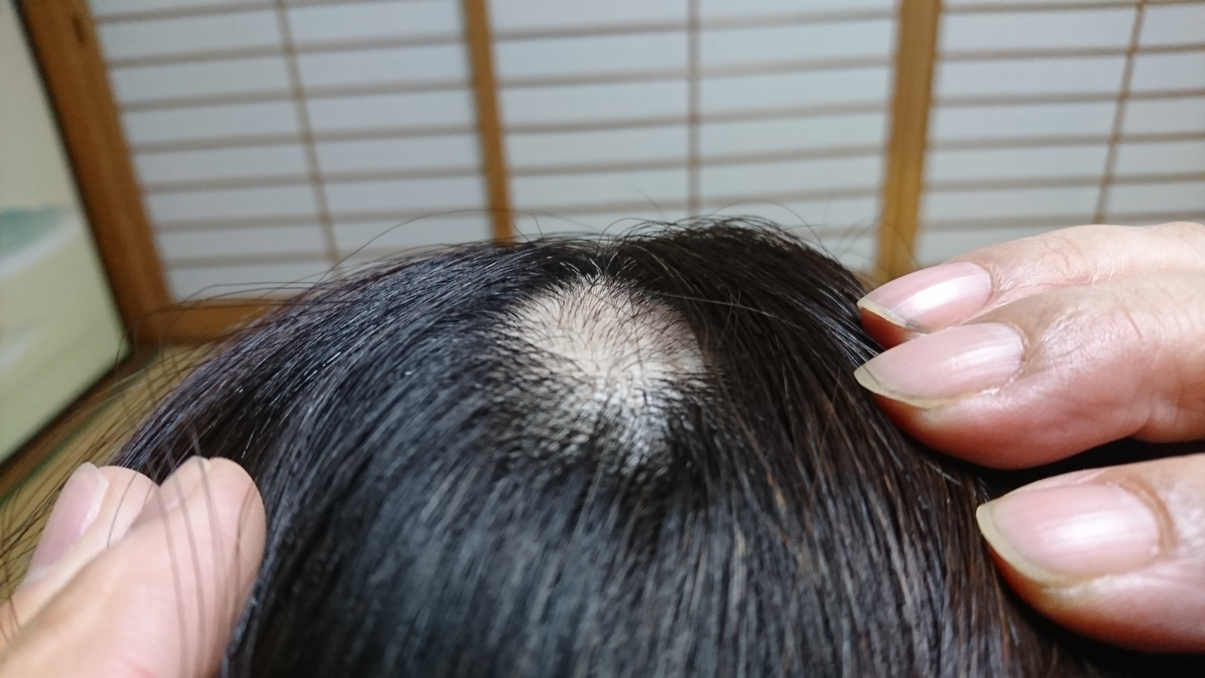 f:id:heiqi-acupuncture:20190314140648j:image
