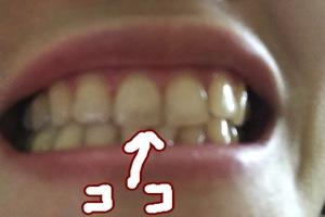 歯の黄ばみ。ルイボスティーのせい?妊活中、濃いルイボスティーを常飲していたら、歯の先端がうっすら茶色っぽいような色素沈着を発見。歯の着色対策について紹介します。