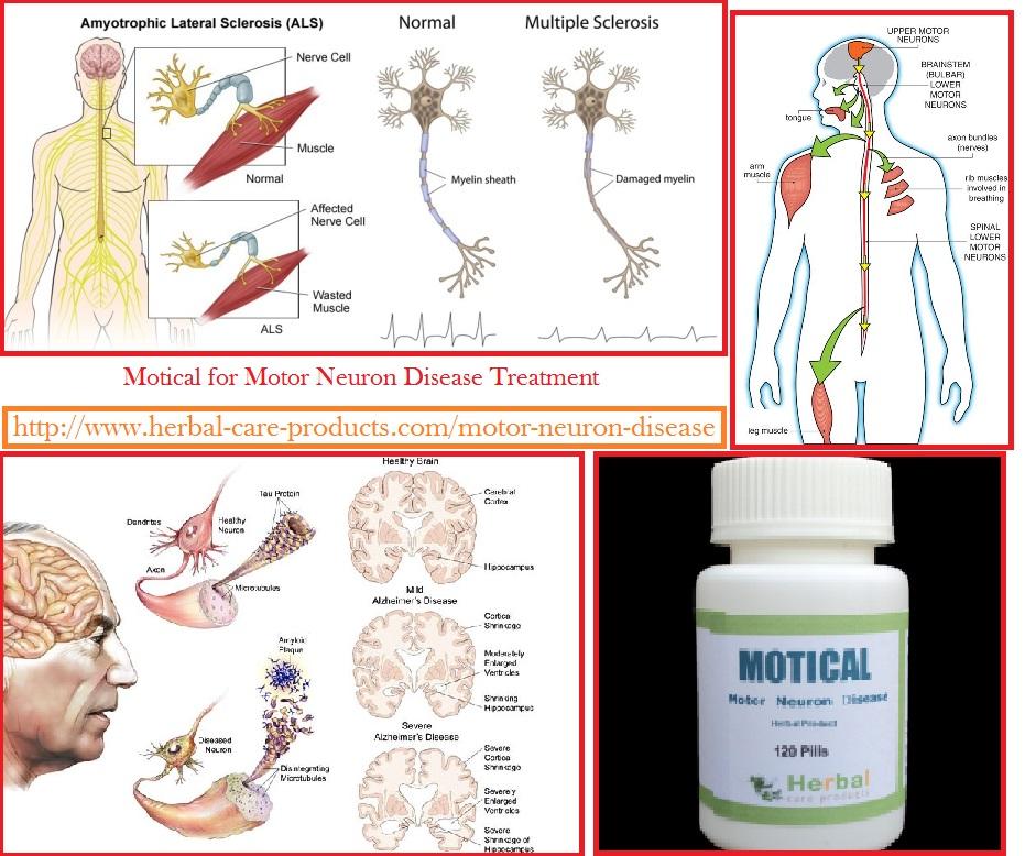 f:id:herbalcareproducts:20160909200024j:plain