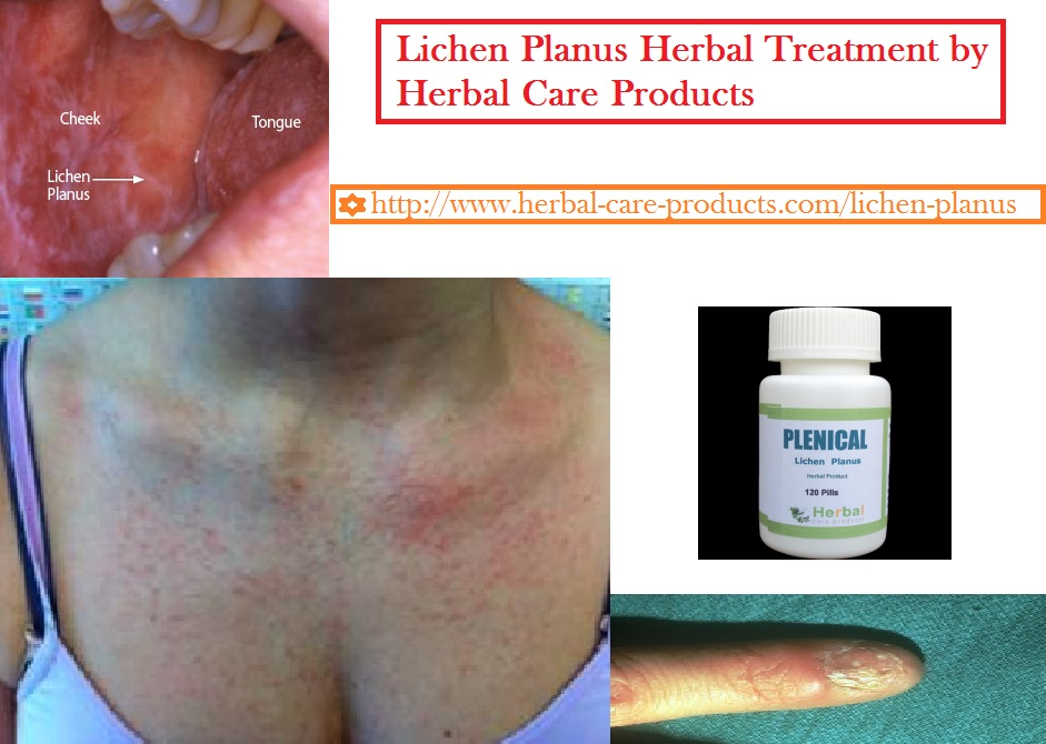 f:id:herbalcareproducts:20161104150117j:plain