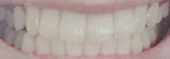 虫歯ゼロの歯、公開