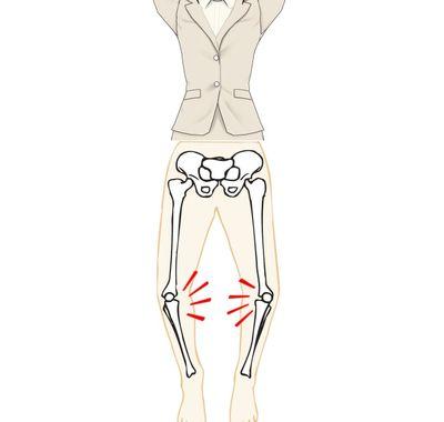 O脚は変形性膝関節症のサイン
