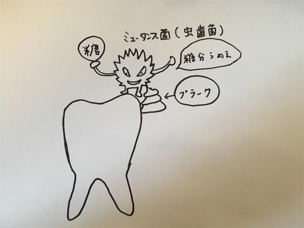 f:id:hideyoshi1537:20170918172429j:image