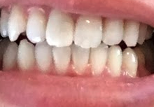 スターホワイトニングでホワイトニングした後の歯の写真