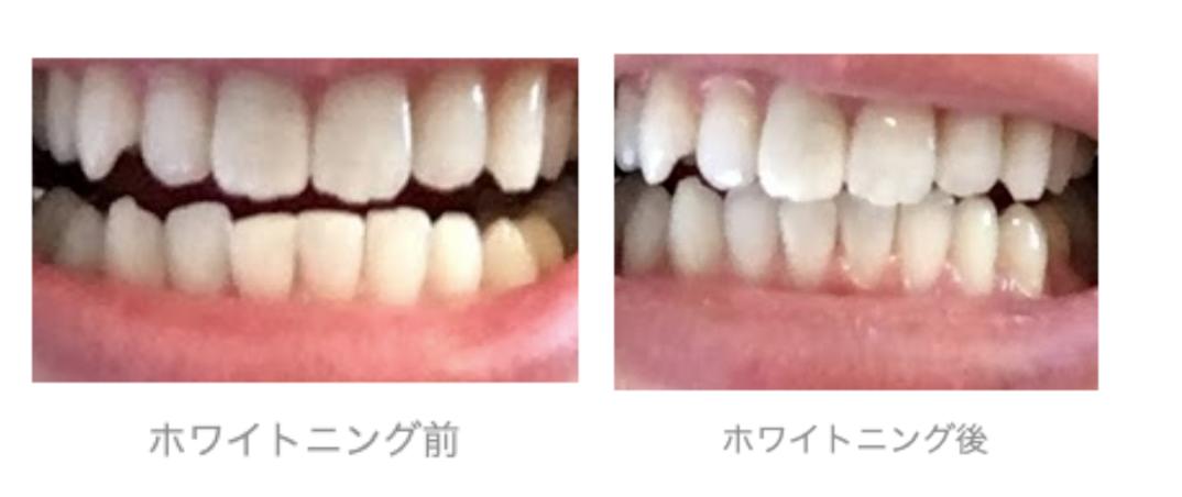 f:id:hideyoshi1537:20190907210248p:plain