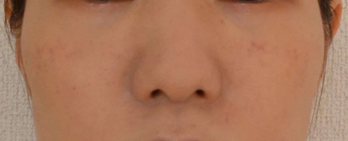 f:id:hikarinodokekiharunouta:20200730024626p:plain