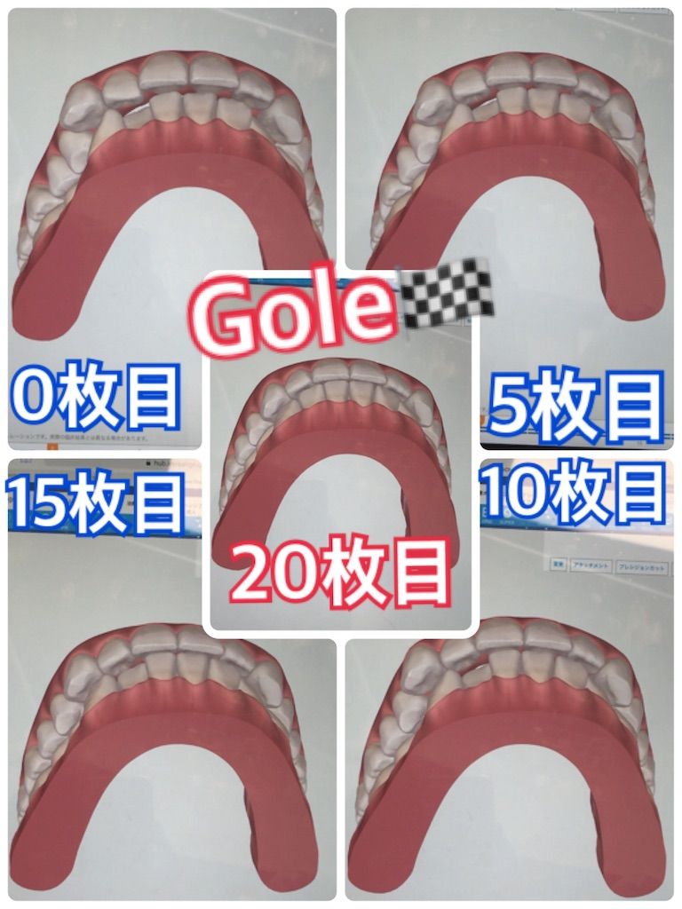 f:id:himitsunoao:20190206230536j:image