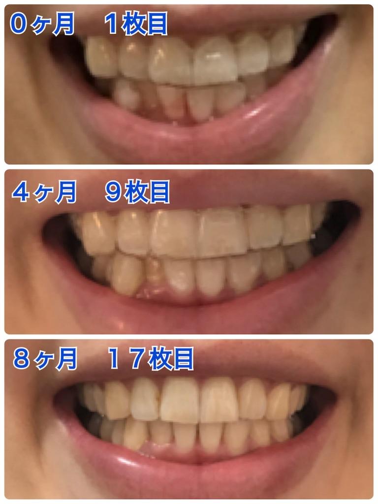 f:id:himitsunoao:20190503105756j:image