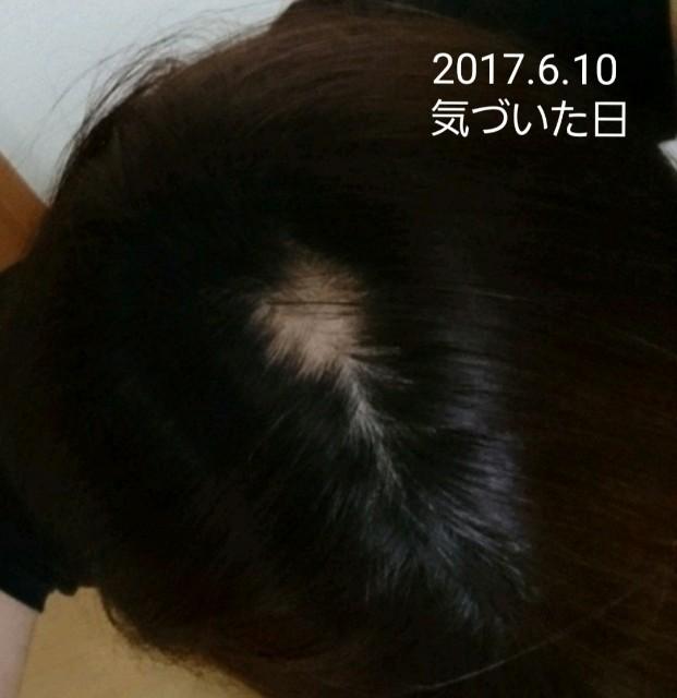 f:id:hirakegoma20190508:20190609174507j:image