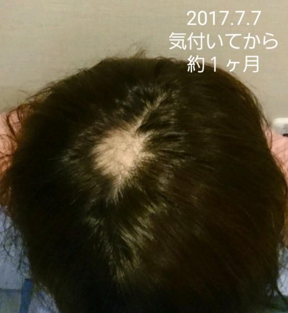 f:id:hirakegoma20190508:20190609174531j:image