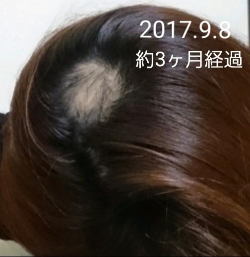 f:id:hirakegoma20190508:20190609182110j:image