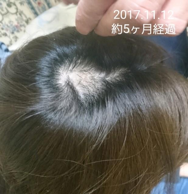 f:id:hirakegoma20190508:20190609182833j:image