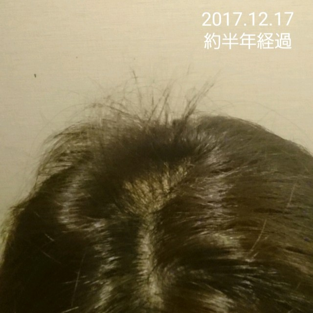 f:id:hirakegoma20190508:20190609183503j:image
