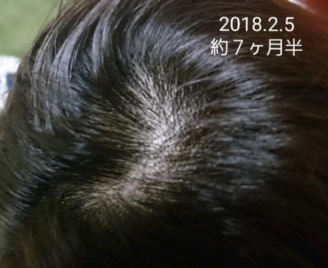f:id:hirakegoma20190508:20190609184437j:image