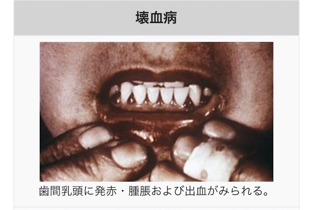 f:id:hirokimiyagi:20210729223731j:image