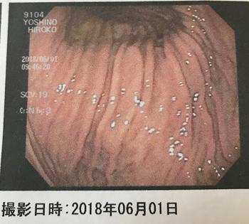 f:id:hirokorokoroko:20180601212749j:plain