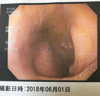 f:id:hirokorokoroko:20180601212820j:plain