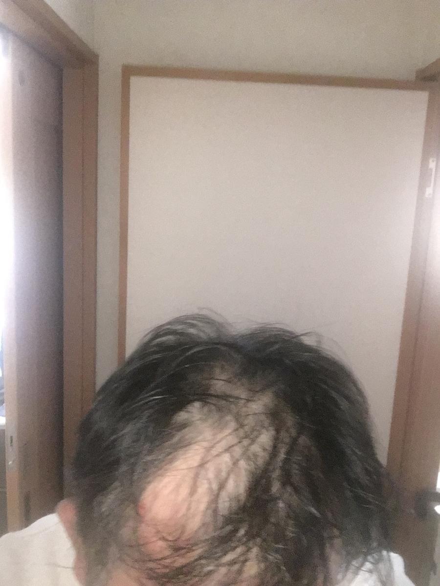 f:id:hisanagakun:20210514085241j:plain