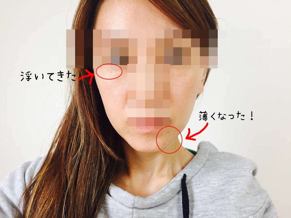 f:id:hiyake:20161202105246j:plain