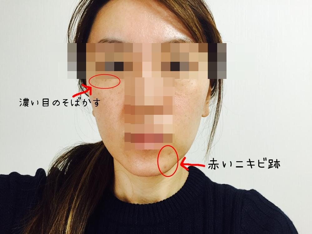 f:id:hiyake:20161202105851j:plain